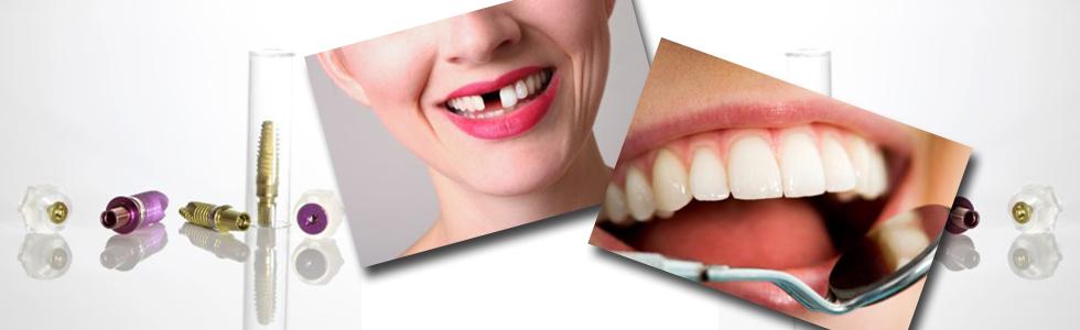 Implantate künstliche Zahnwurzeln